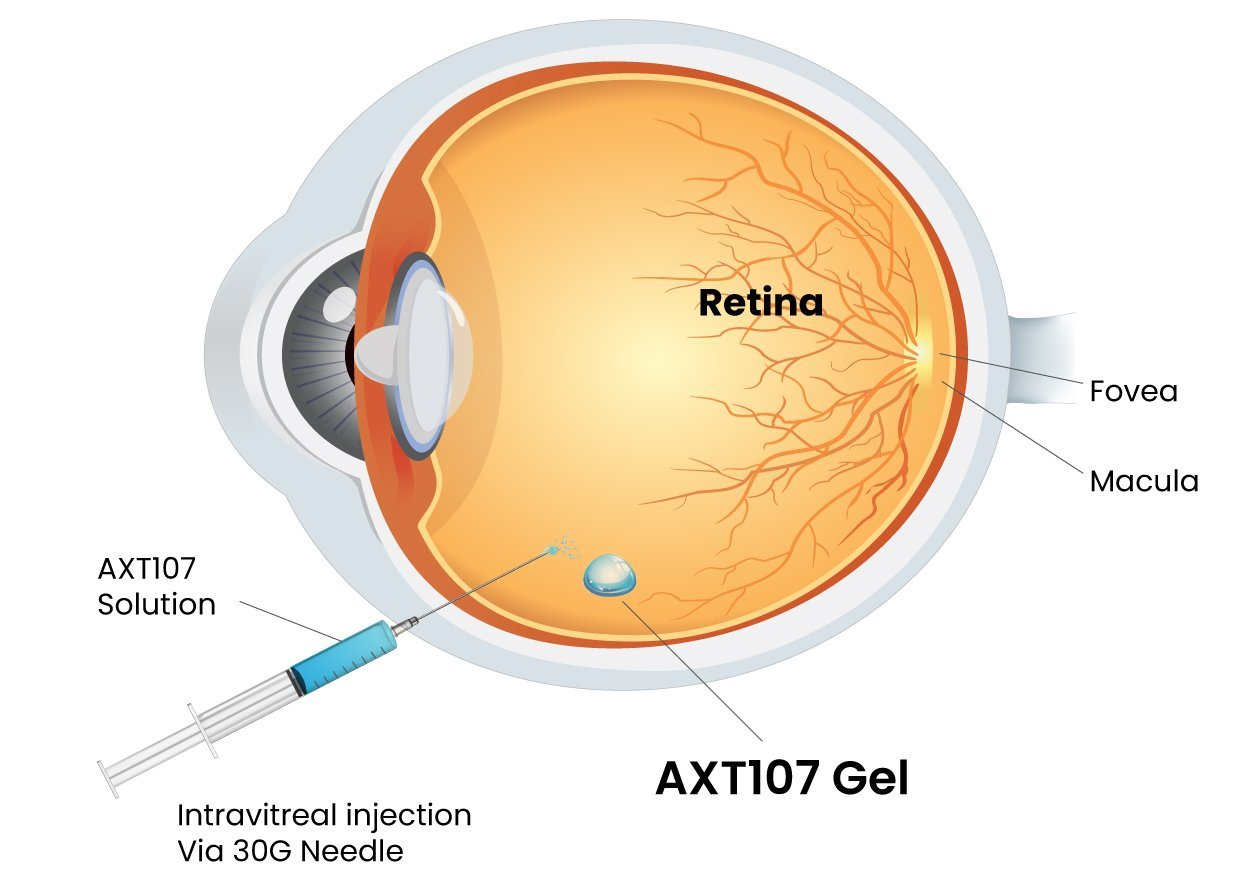 Asclepix AXT107 Intravitre Injection